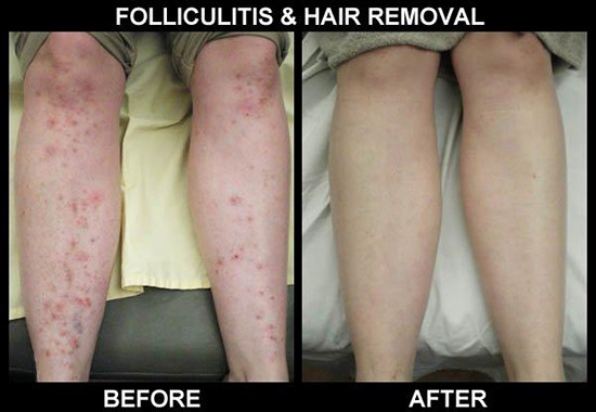 Folliculitis and Laser Hair Reduction