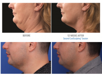 CoolSculpting chin - before & after