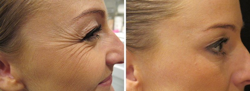 botox injections before & after treatment