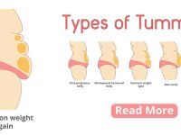 Types Of Female Tummies Banner. Tummy Tuck Surgery Or Abdominopl