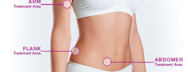 Combination Treatments for the Body (Combo Treatment Improves Body Contouring )